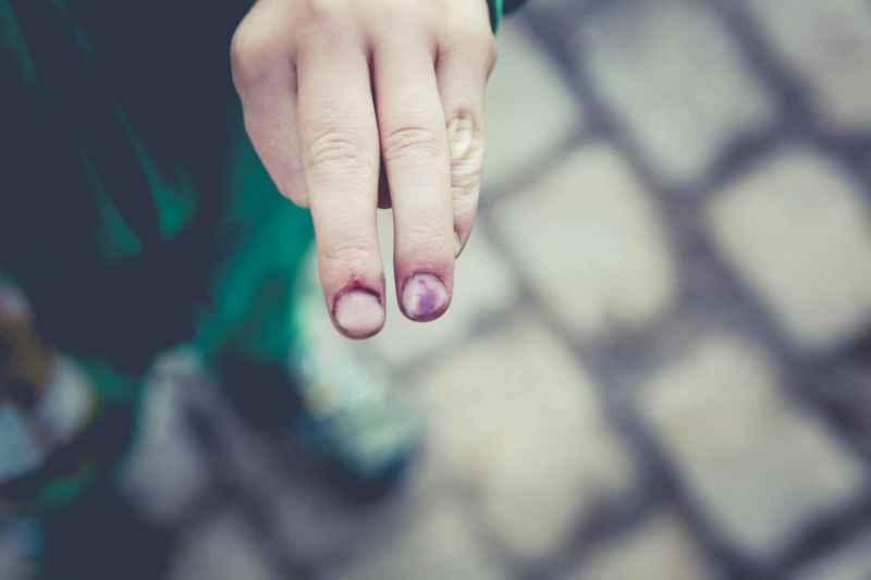 Finger mit blauem Fleck